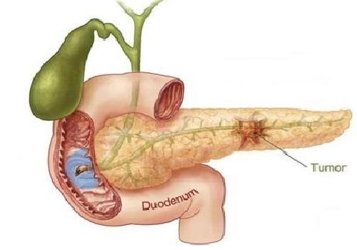 Major-Sign-and-Symptoms-of-Bile-Duct-cancer1.jpg